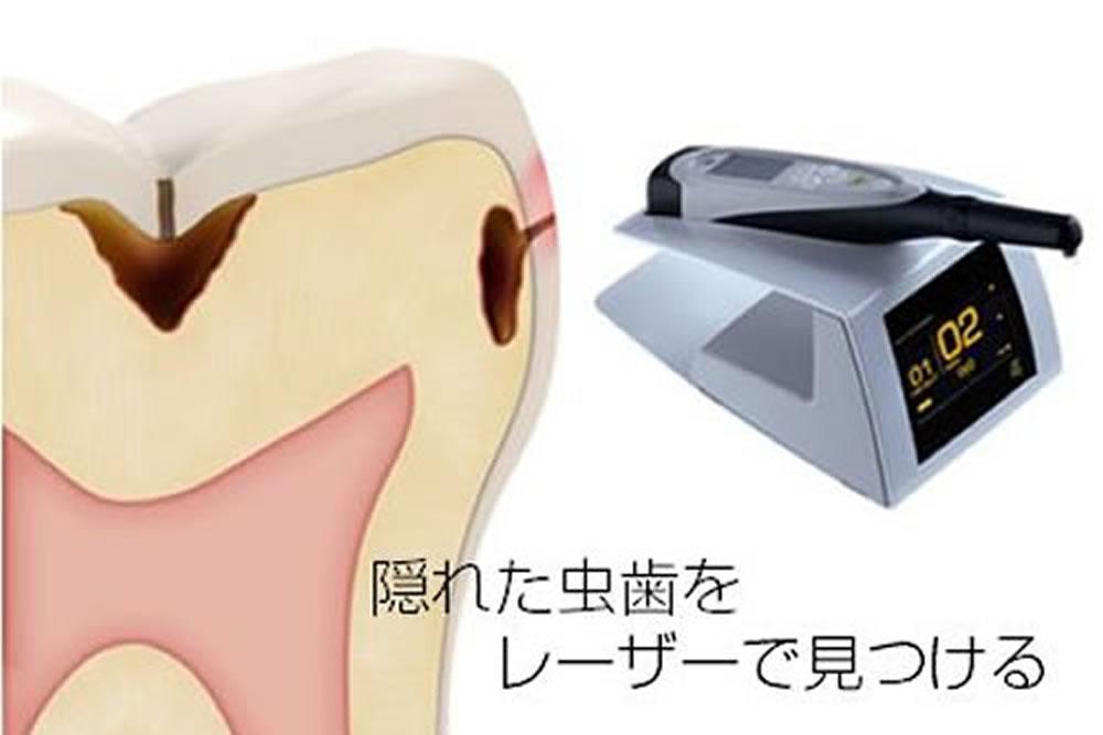 ダイアグノデント(虫歯発見器)
