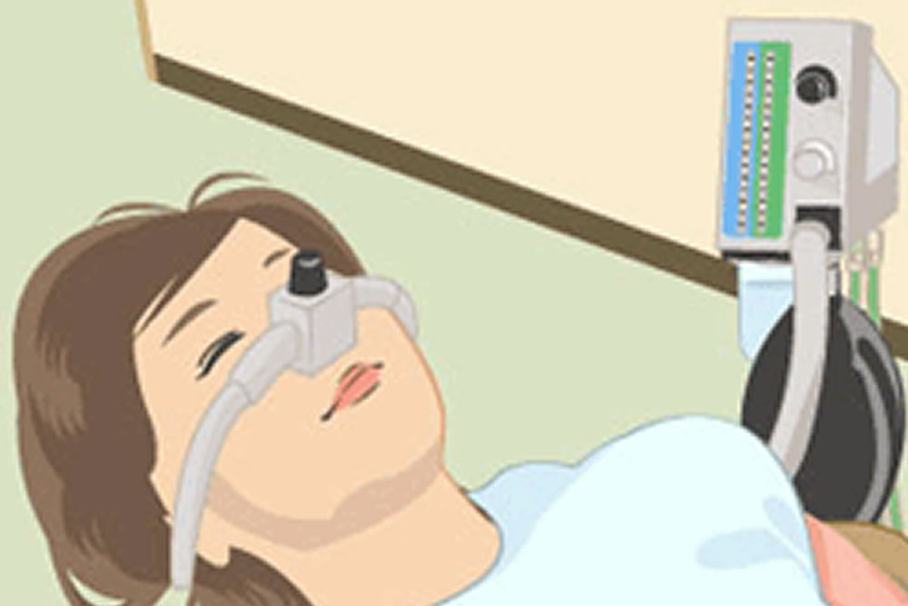 笑気ガス歯科麻酔