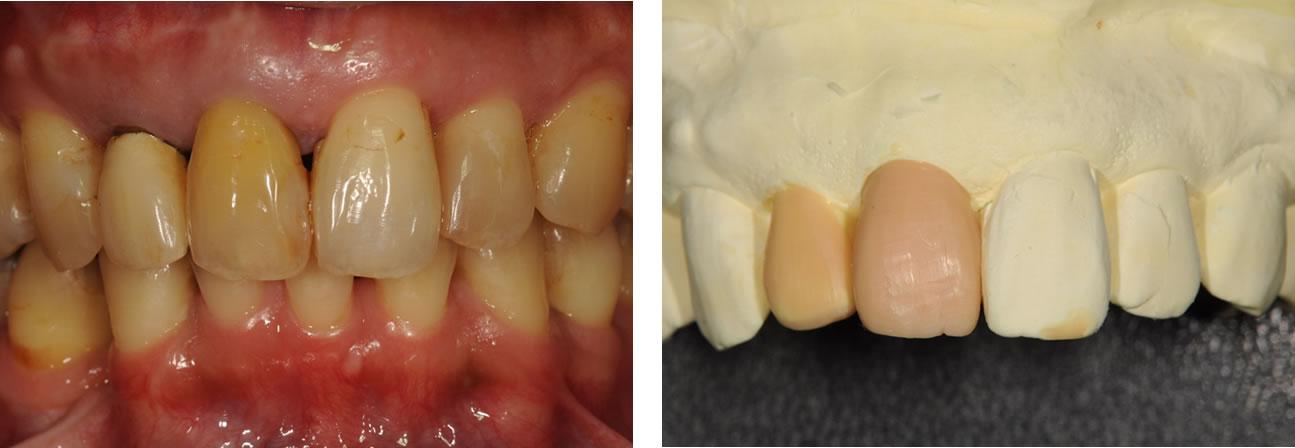 前歯のセラミック治療